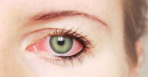 Sindrom Dry Eye
