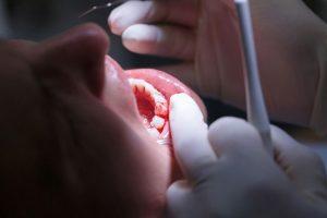 Penyebab Gusi Berdarah dan Tips Pencegahannya